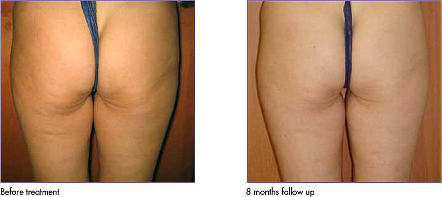 Body Tightening/Cellulite Reduction