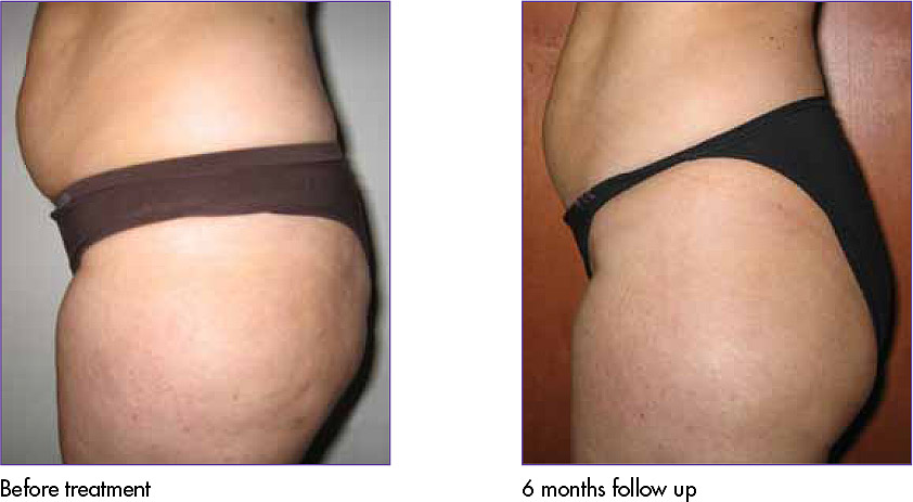 Body Tightening/Cellulite Reduction