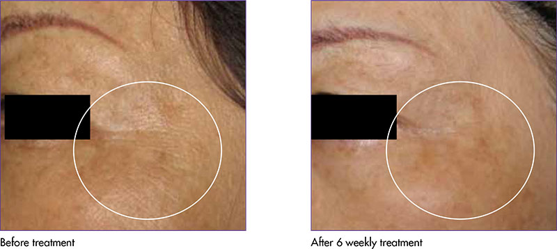 iFine Wrinkle Reduction