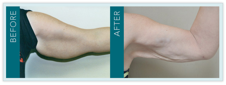 Laser Liposuction - Before & After