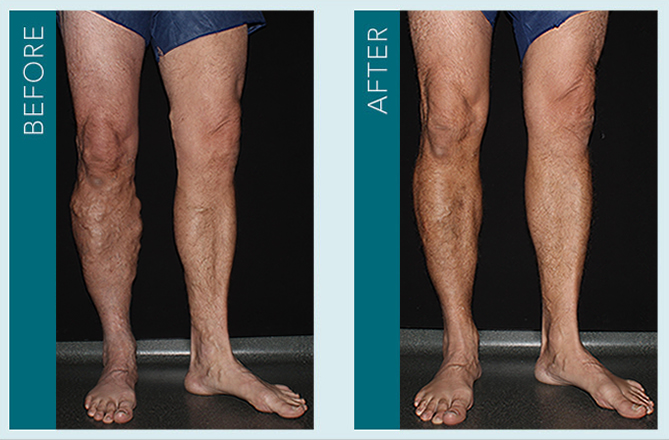 Vein Treatment - Before and After